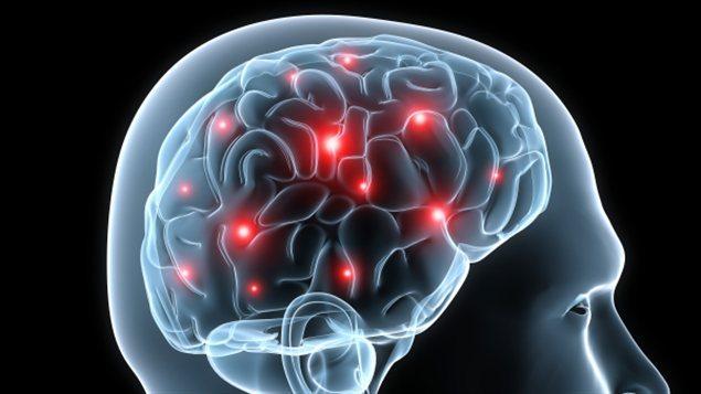 Cerveau activite homme